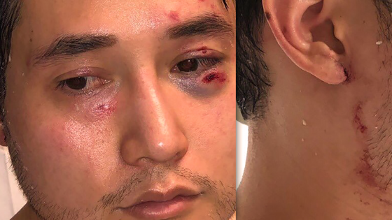 Antifa Assault Andy Ngo